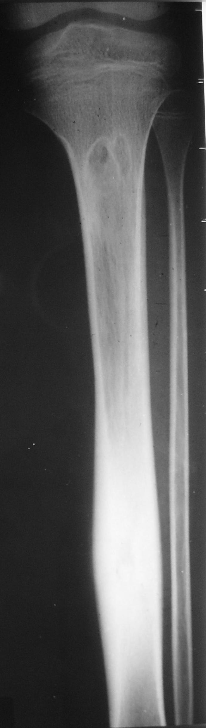 Osteoidi