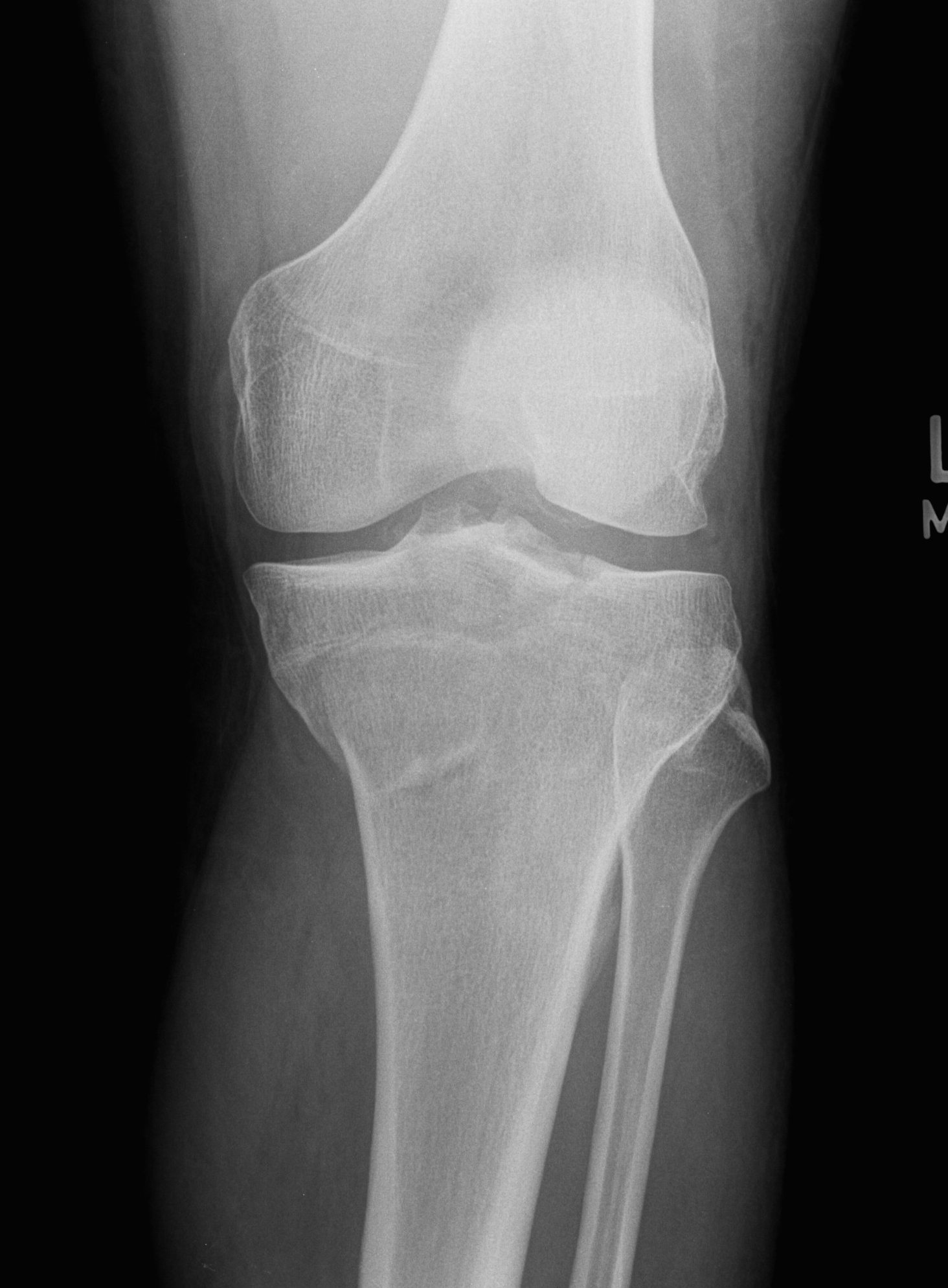 Ucsd musculoskeletal radiology - Tibial plafond fracture classification ...